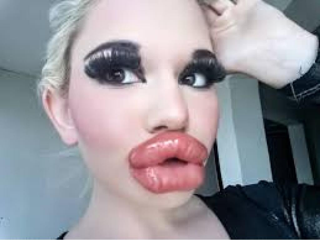 VOÇÊ TERIA CORAGEM? Barbie humana recebe 21ª injeção de preenchimento labial e quer ter os maiores lábios do mundo